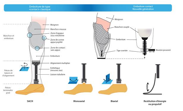 schéma montrant les différents éléments d'une prothèse de jambe, comme la la tige qui fait le lien entre la pièce du pied, l'emboiture dans lequel insérer le moignon, et le manchon pour protéger la peau du contact avec la prothèse